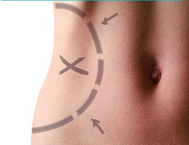 Ejercicios tras cirugía plástica corporal: ¿Si o no? ¿Cómo ycuándo?