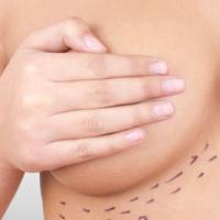 Aumento de mamas: ¿Areolar, axilar o submamaria?