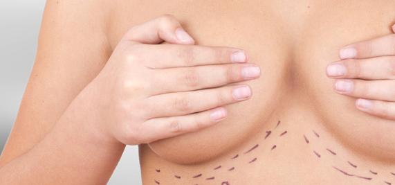 aumento mamario doctor Esteban Torres
