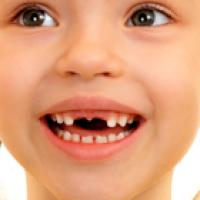 ¿Cómo enfrentar el cambio dentario?
