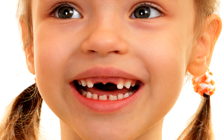 cambio dientes
