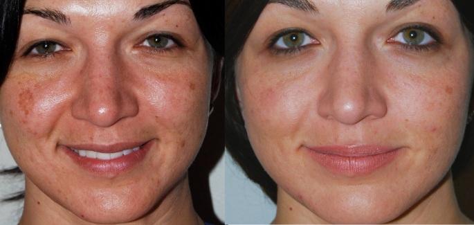 antes y después cuidados rostro