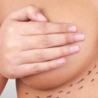 Nueva generación de implantes mamarios: Más tecnológicos y naturales