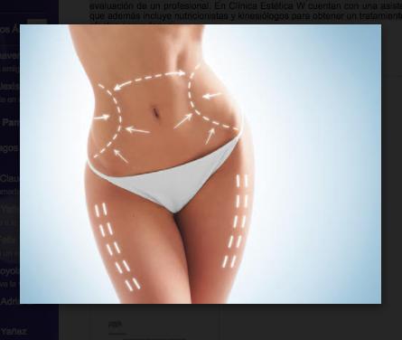 #Belleza Lipo Slim Body: lista para el verano en una solasesión